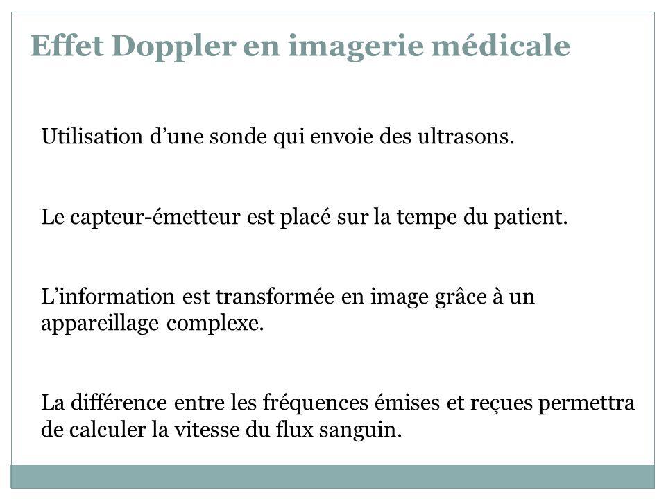 Types déchographies Doppler le Doppler continu le Doppler pulsé Actuellement les échographies Doppler utilisent un codage couleur