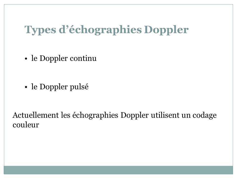Echo Doppler mesurée au niveau de la fenêtre temporale ACA : Artère Cérébrale Antérieure MCA : Artère Cérébrale Moyenne PCA : Artère Cérébrale Postérieure