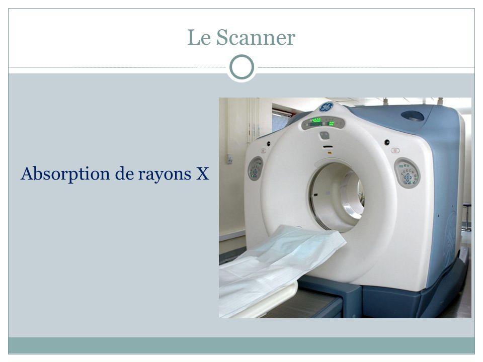 Angiographie par résonance magnétique Cette méthode permet lexploration précise des vaisseaux sanguins.