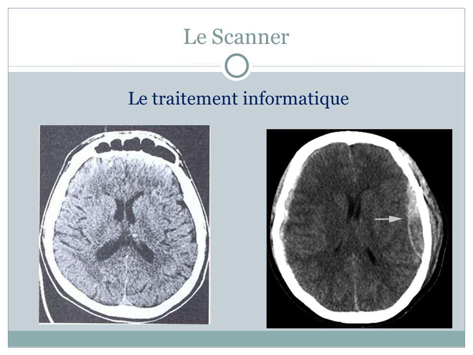 Différents types de scanner Scanner hélicoïdal Angioscanner