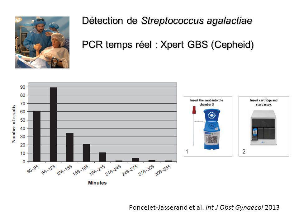 Détection de Streptococcus agalactiae PCR temps réel : Xpert GBS (Cepheid) Poncelet-Jasserand et al. Int J Obst Gynaecol 2013