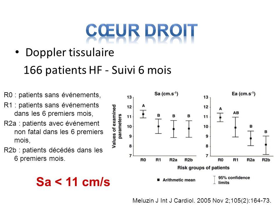Doppler tissulaire 166 patients HF - Suivi 6 mois R0 : patients sans événements, R1 : patients sans événements dans les 6 premiers mois, R2a : patient