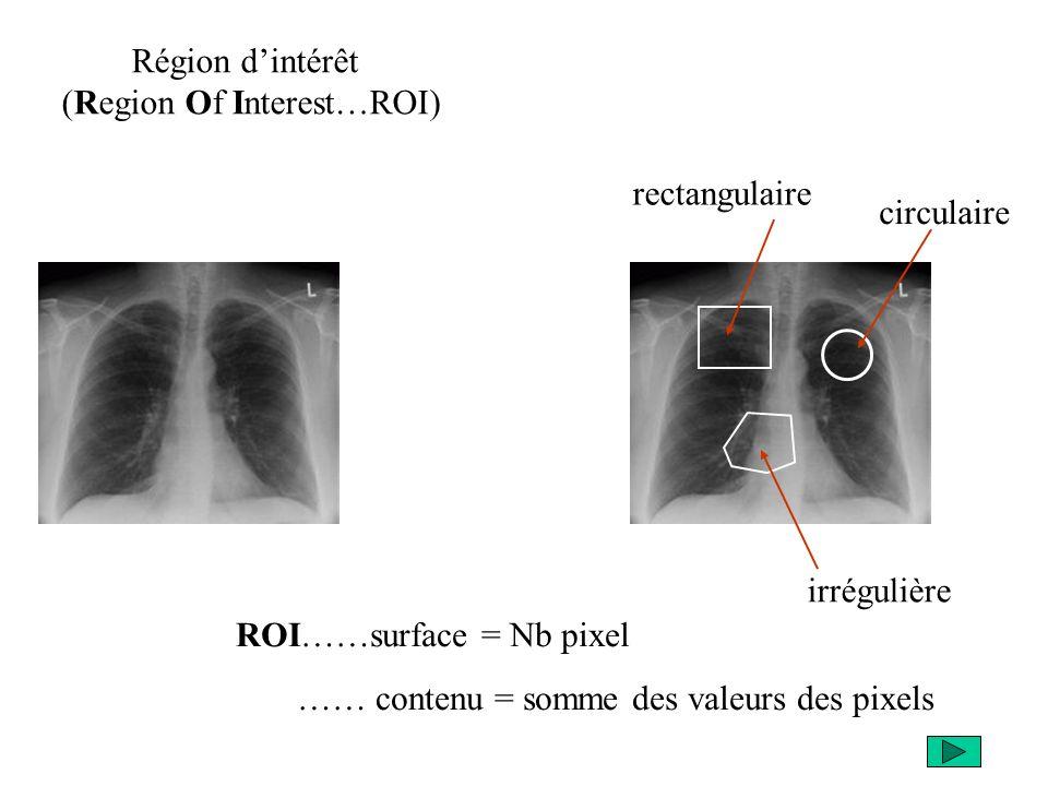 Région dintérêt (Region Of Interest…ROI) rectangulaire circulaire irrégulière ROI……surface = Nb pixel …… contenu = somme des valeurs des pixels