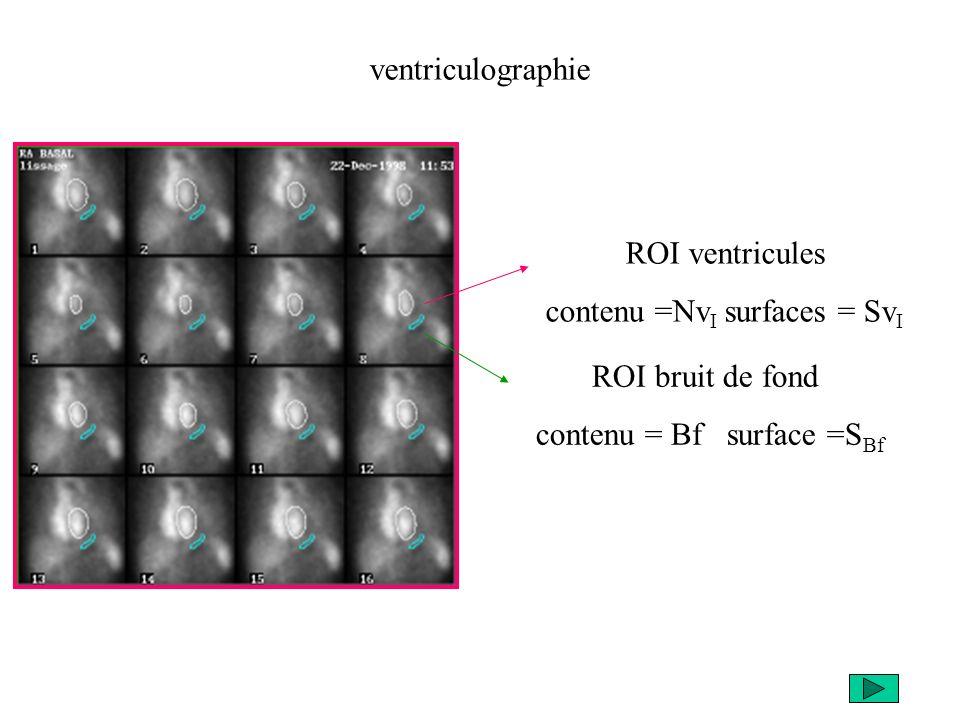 ventriculographie ROI ventricules contenu =Nv I surfaces = Sv I ROI bruit de fond contenu = Bf surface =S Bf