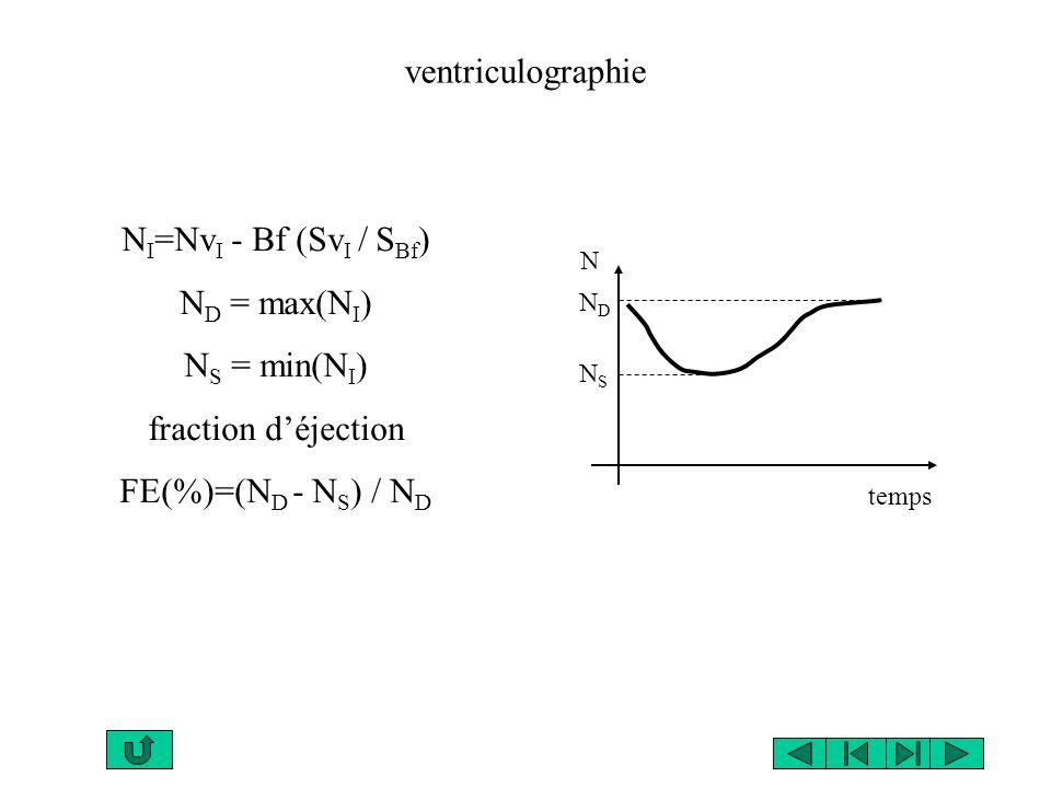 temps N NSNS NDND ventriculographie N I =Nv I - Bf (Sv I / S Bf ) N D = max(N I ) N S = min(N I ) fraction déjection FE(%)=(N D - N S ) / N D