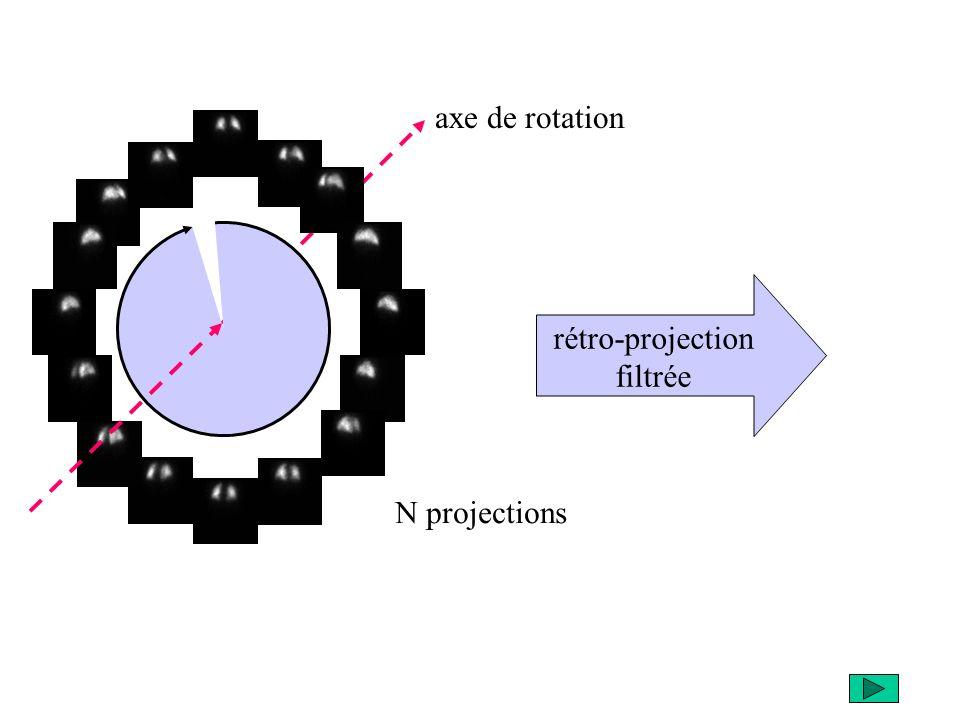 N projections rétro-projection filtrée axe de rotation