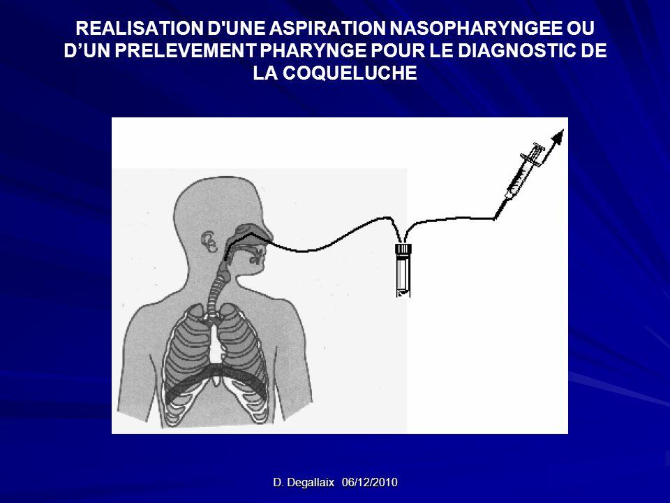 REALISATION D'UNE ASPIRATION NASOPHARYNGEE OU DUN PRELEVEMENT PHARYNGE POUR LE DIAGNOSTIC DE LA COQUELUCHE