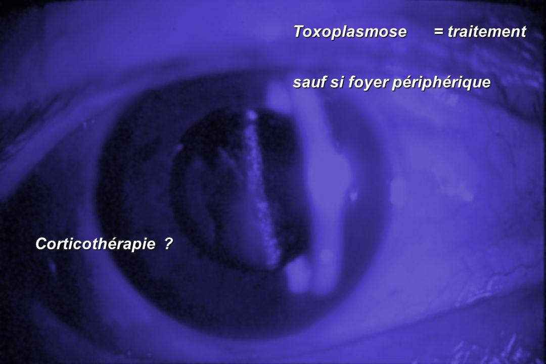 Toxoplasmose= traitement Toxoplasmose= traitement sauf si foyer périphérique sauf si foyer périphérique Corticothérapie ? Corticothérapie ?