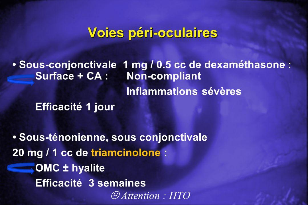 Voies péri-oculaires Sous-conjonctivale 1 mg / 0.5 cc de dexaméthasone : Surface + CA : Non-compliant Inflammations sévères Efficacité 1 jour Sous-tén
