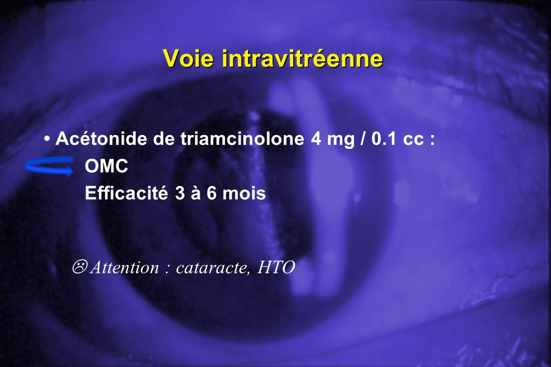 Voie intravitréenne Acétonide de triamcinolone 4 mg / 0.1 cc : OMC Efficacité 3 à 6 mois Attention : cataracte, HTO
