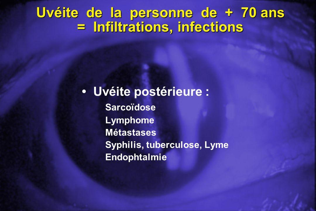 Uvéite de la personne de + 70 ans = Infiltrations, infections Uvéite postérieure : Sarcoïdose Lymphome Métastases Syphilis, tuberculose, Lyme Endophta