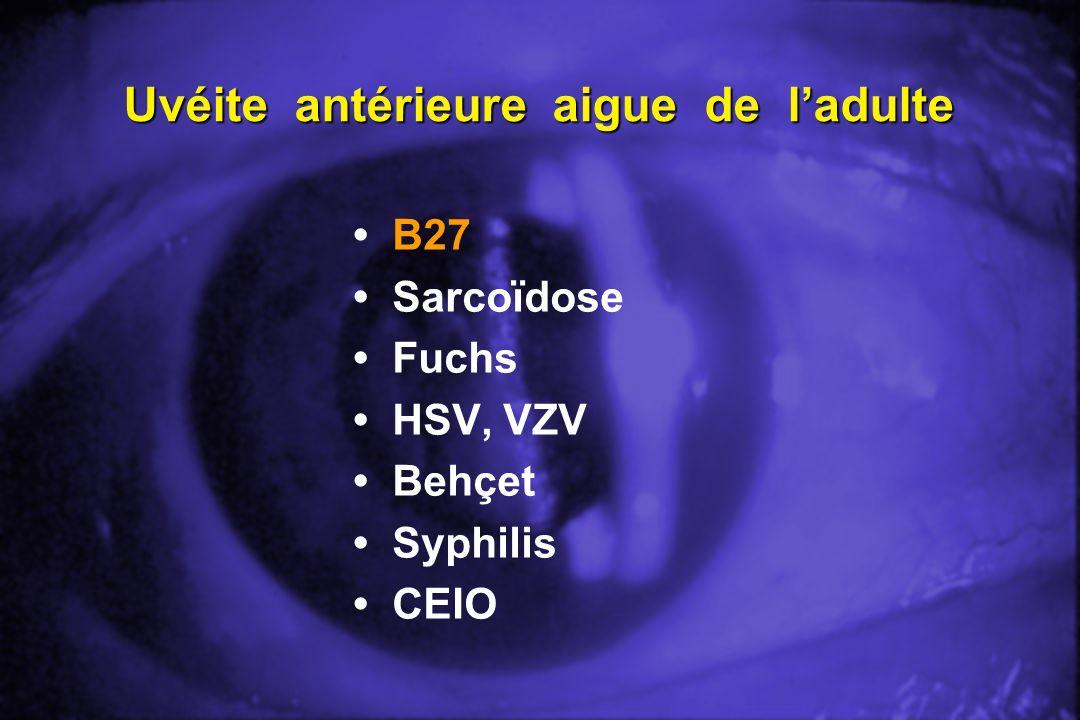 Uvéite antérieure aigue de ladulte B27 Sarcoïdose Fuchs HSV, VZV Behçet Syphilis CEIO