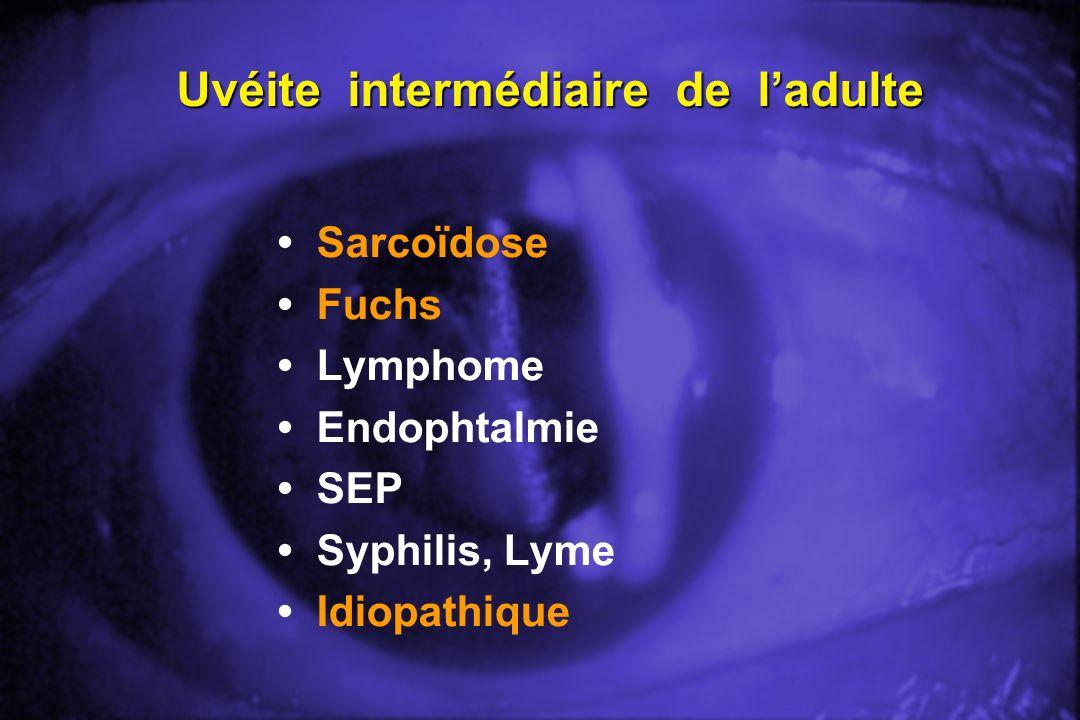 Uvéite intermédiaire de ladulte Sarcoïdose Fuchs Lymphome Endophtalmie SEP Syphilis, Lyme Idiopathique