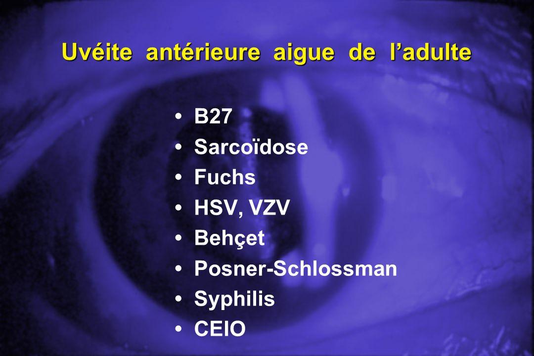 Uvéite antérieure aigue de ladulte B27 Sarcoïdose Fuchs HSV, VZV Behçet Posner-Schlossman Syphilis CEIO