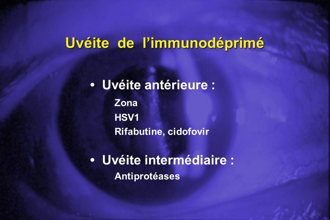 Uvéite de limmunodéprimé Uvéite antérieure : Zona HSV1 Rifabutine, cidofovir Uvéite intermédiaire : Antiprotéases