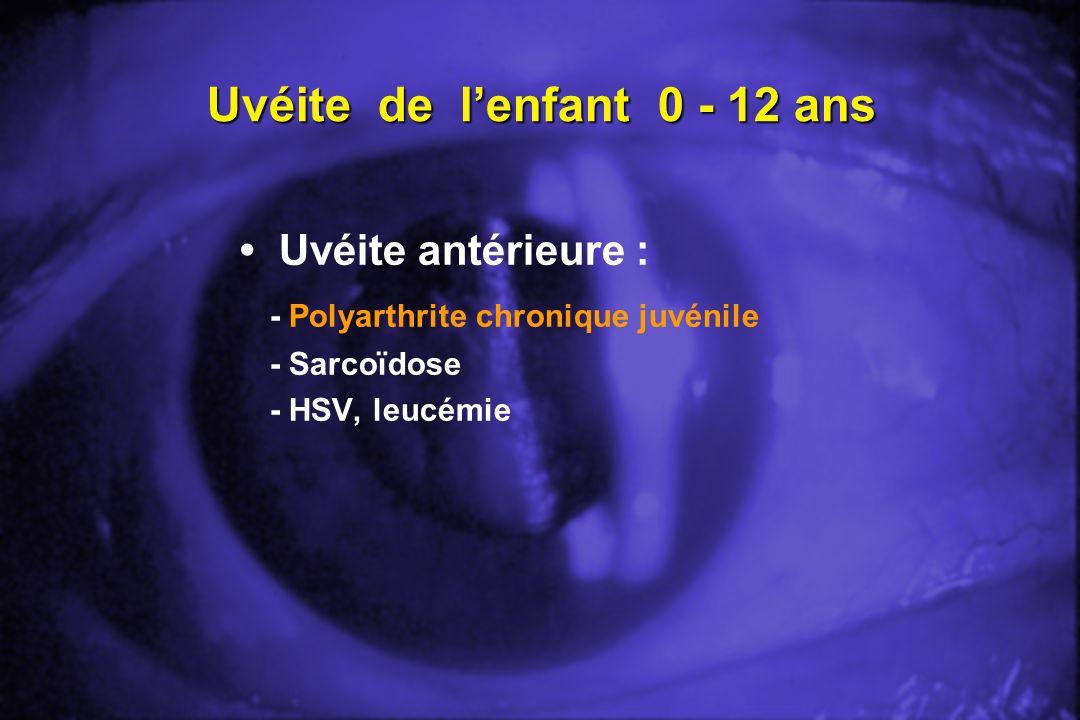 Uvéite de lenfant 0 - 12 ans Uvéite antérieure : - Polyarthrite chronique juvénile - Sarcoïdose - HSV, leucémie