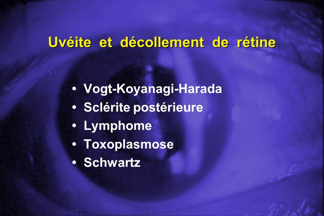 Uvéite et décollement de rétine Vogt-Koyanagi-Harada Sclérite postérieure Lymphome Toxoplasmose Schwartz