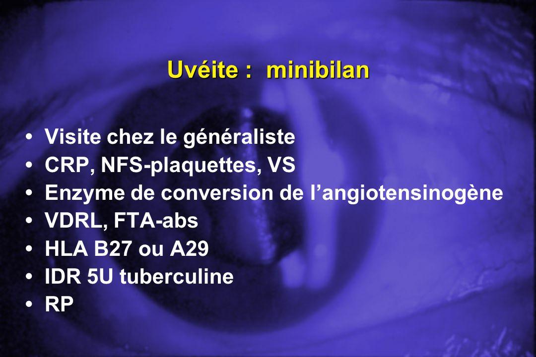 Uvéite : minibilan Visite chez le généraliste CRP, NFS-plaquettes, VS Enzyme de conversion de langiotensinogène VDRL, FTA-abs HLA B27 ou A29 IDR 5U tu