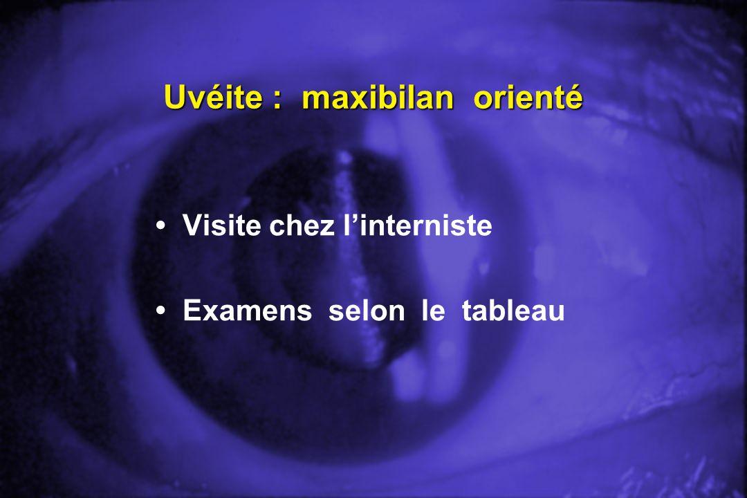 Uvéite : maxibilan orienté Visite chez linterniste Examens selon le tableau