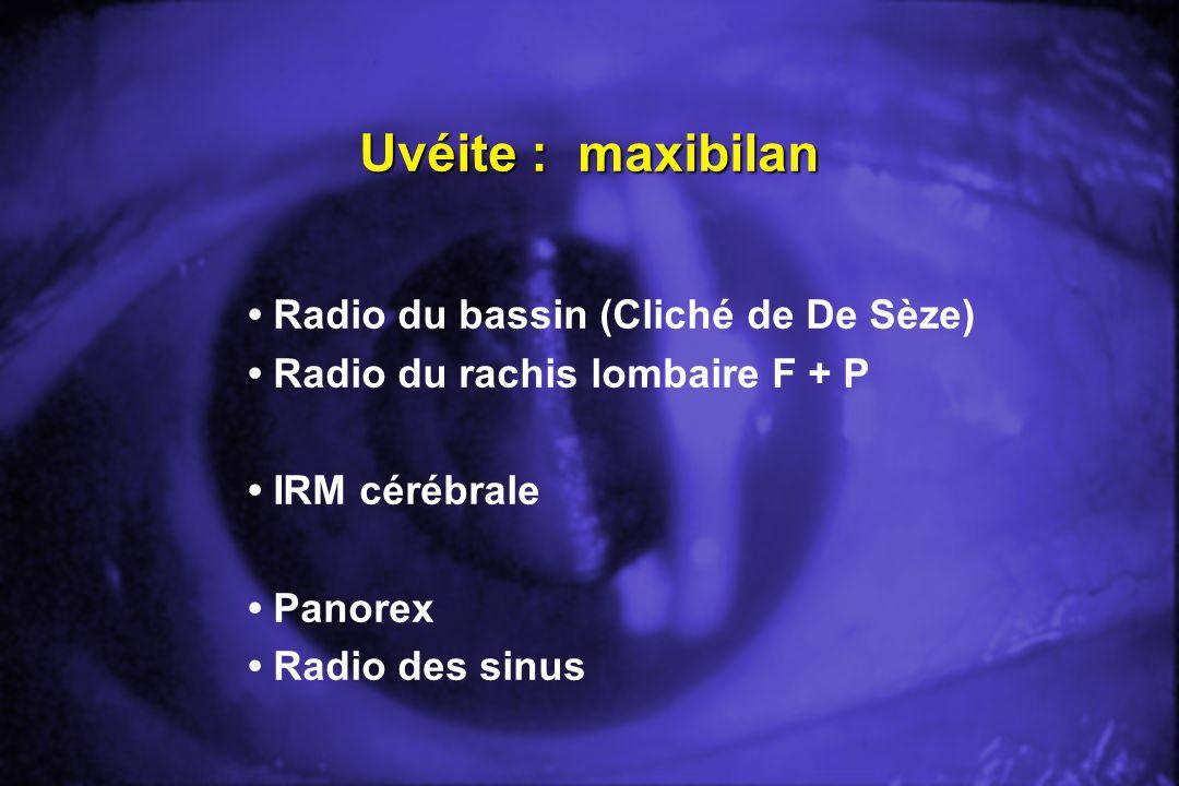 Uvéite : maxibilan Radio du bassin (Cliché de De Sèze) Radio du rachis lombaire F + P IRM cérébrale Panorex Radio des sinus