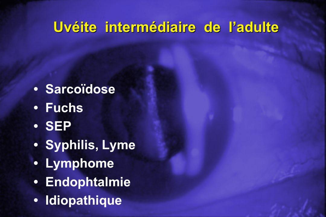 Uvéite intermédiaire de ladulte Sarcoïdose Fuchs SEP Syphilis, Lyme Lymphome Endophtalmie Idiopathique