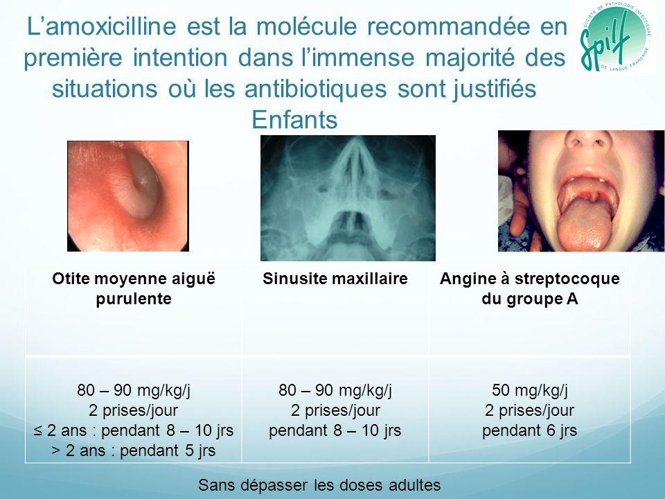 Lamoxicilline est la molécule recommandée en première intention dans limmense majorité des situations où les antibiotiques sont justifiés Enfants Otit