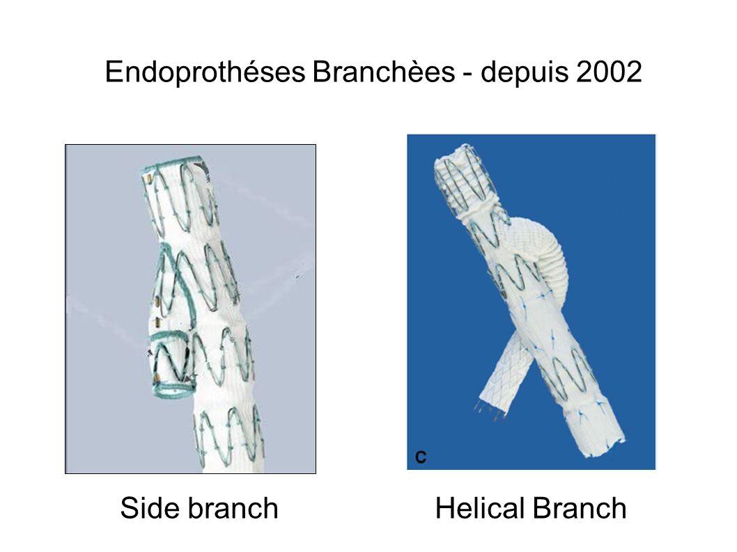 Endoprothéses Branchèes - depuis 2002 Side branch Helical Branch