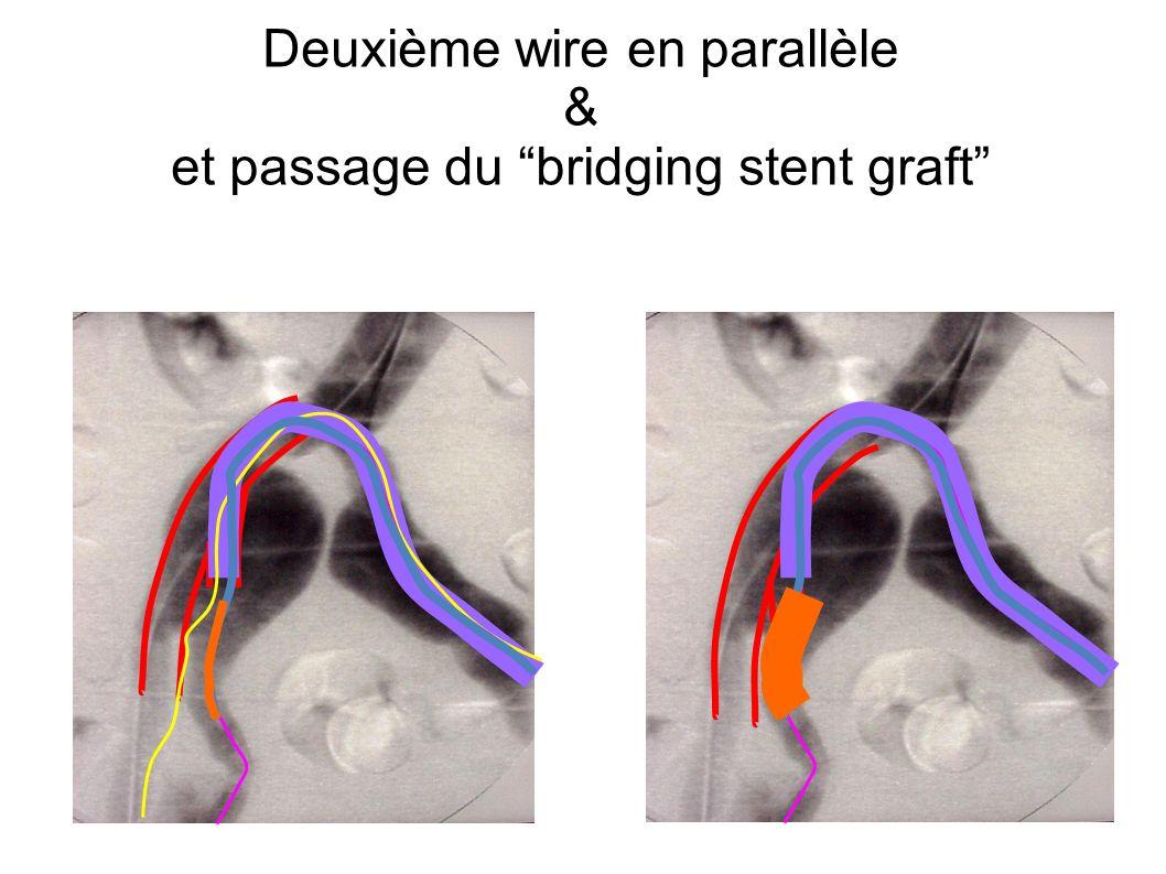 Deuxième wire en parallèle & et passage du bridging stent graft