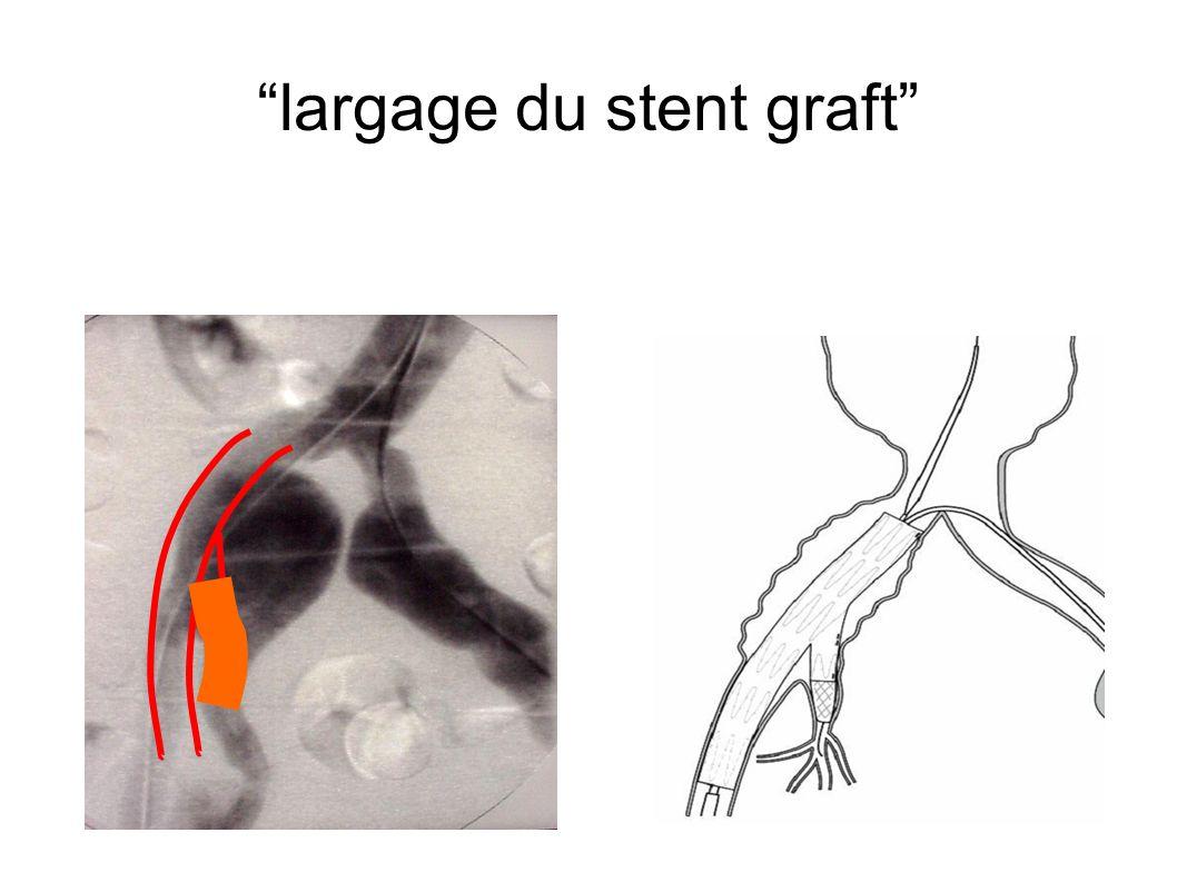 largage du stent graft