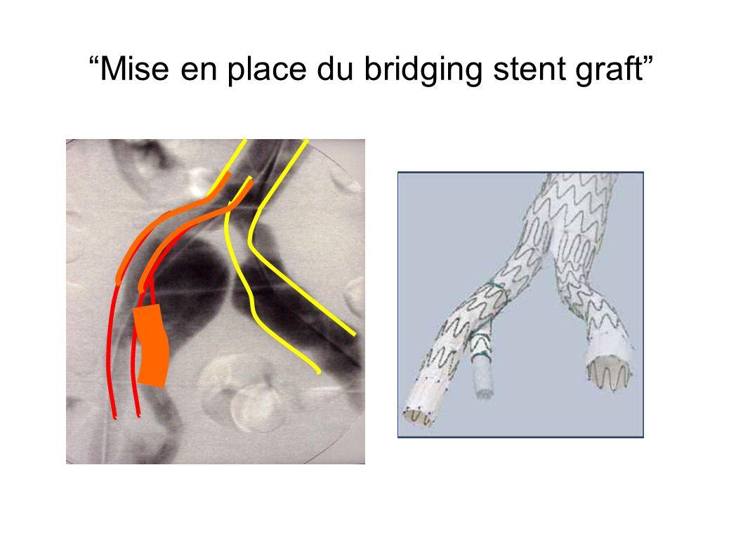 Mise en place du bridging stent graft