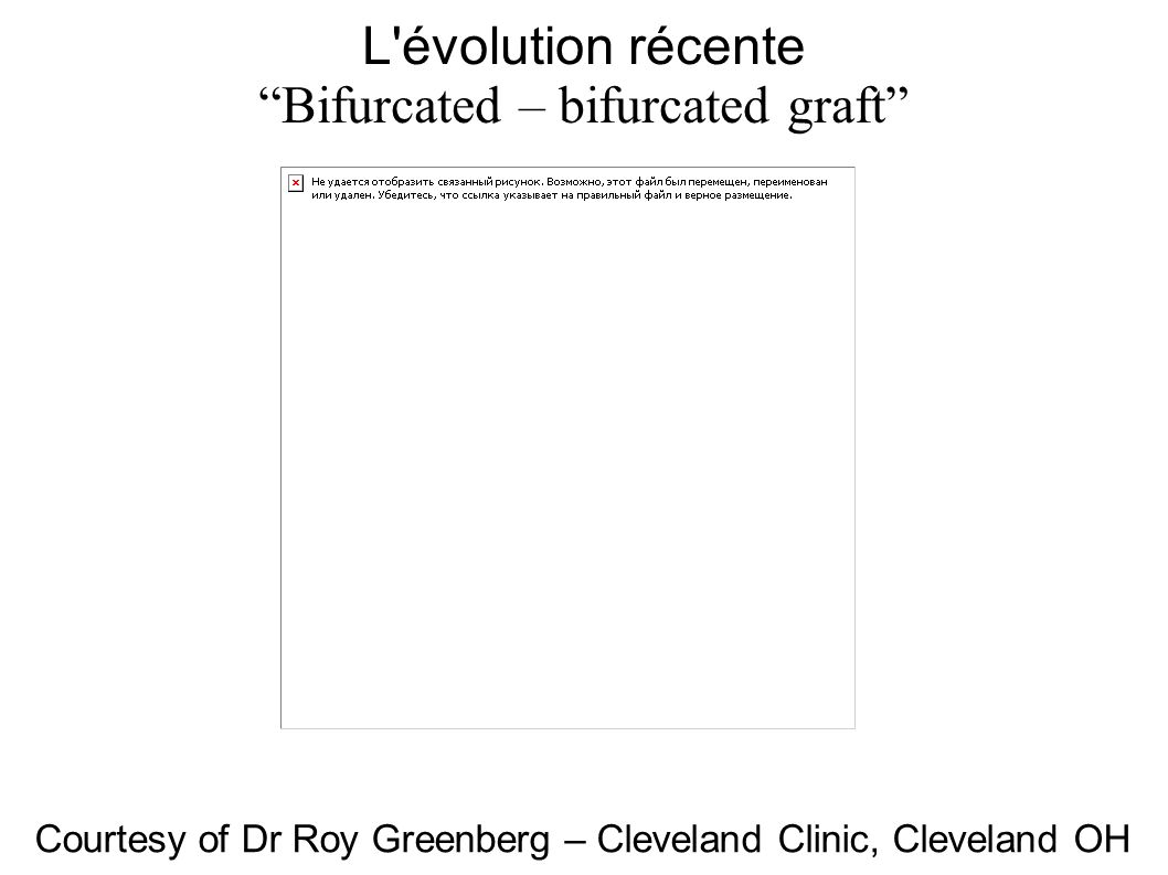 L évolution récente Bifurcated – bifurcated graft Courtesy of Dr Roy Greenberg – Cleveland Clinic, Cleveland OH