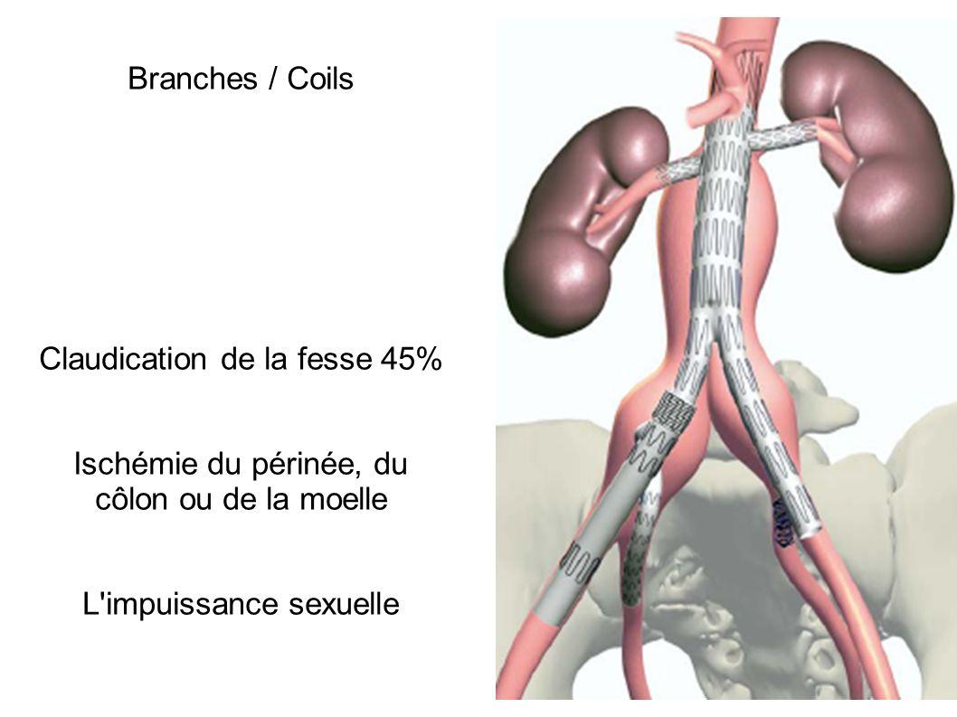 Branches / Coils Claudication de la fesse 45% Ischémie du périnée, du côlon ou de la moelle L'impuissance sexuelle
