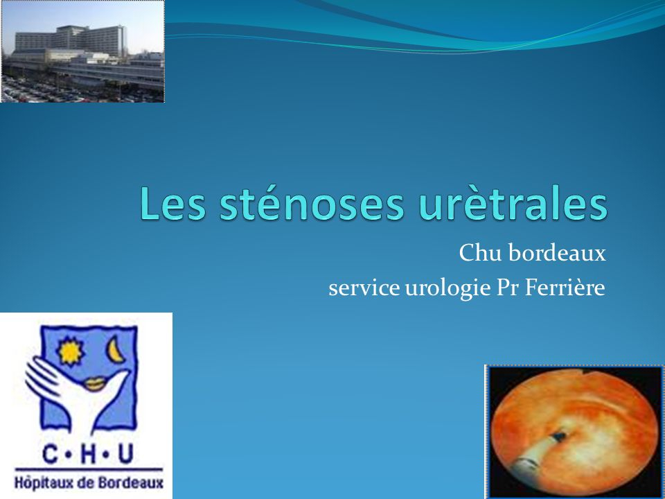 Chu bordeaux service urologie Pr Ferrière