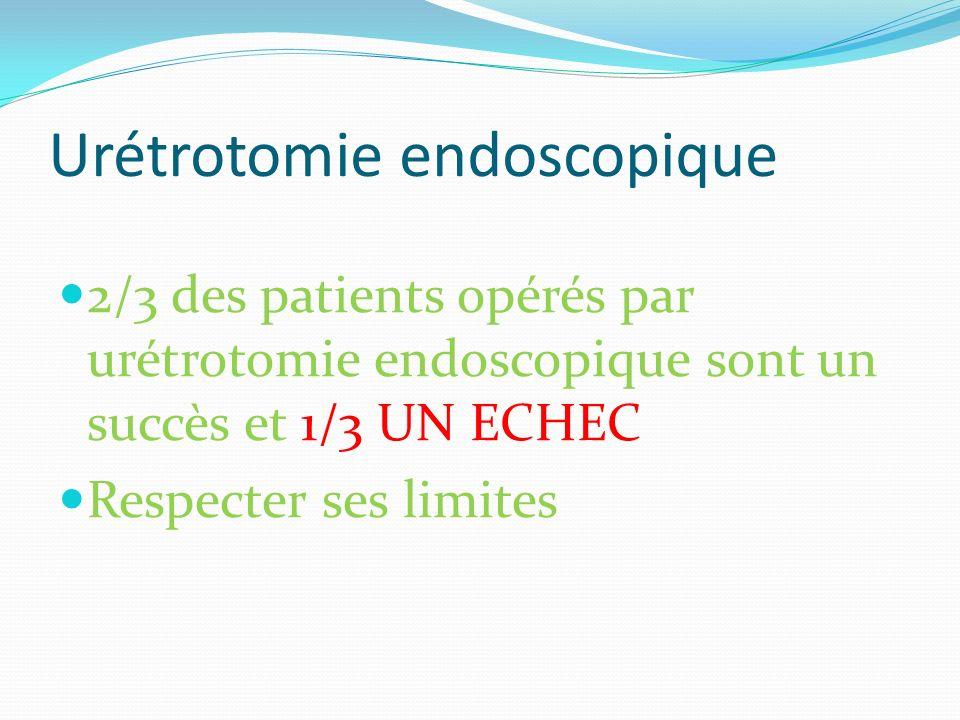 Urétrotomie endoscopique 2/3 des patients opérés par urétrotomie endoscopique sont un succès et 1/3 UN ECHEC Respecter ses limites