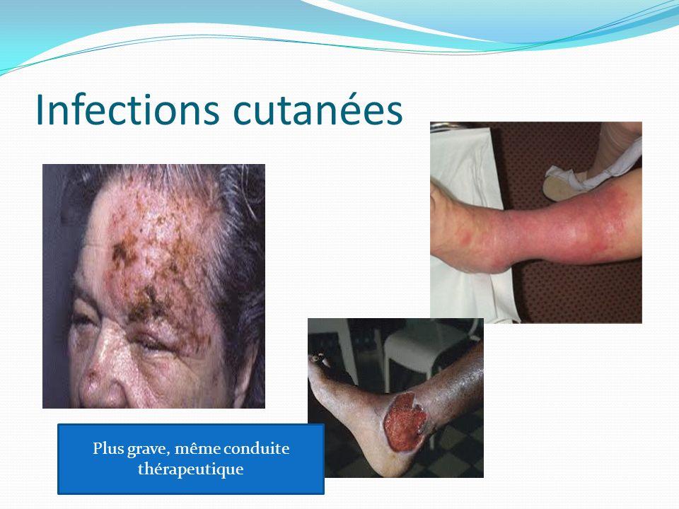 Infections cutanées Plus grave, même conduite thérapeutique