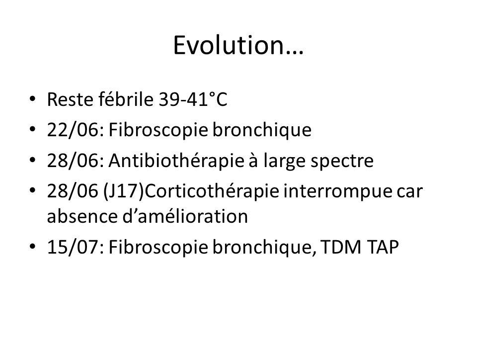 Evolution… Reste fébrile 39-41°C 22/06: Fibroscopie bronchique 28/06: Antibiothérapie à large spectre 28/06 (J17)Corticothérapie interrompue car absen