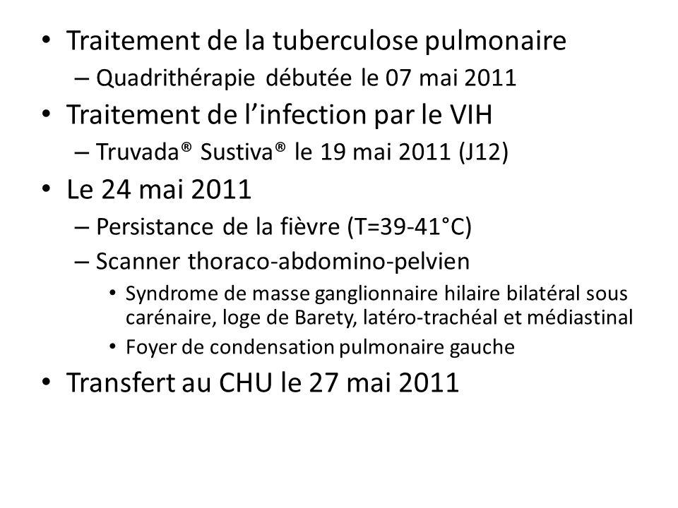 Traitement de la tuberculose pulmonaire – Quadrithérapie débutée le 07 mai 2011 Traitement de linfection par le VIH – Truvada® Sustiva® le 19 mai 2011