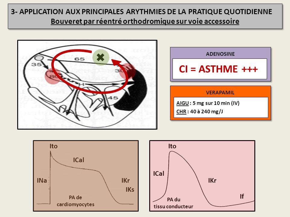 3- APPLICATION AUX PRINCIPALES ARYTHMIES DE LA PRATIQUE QUOTIDIENNE Bouveret par réentré orthodromique sur voie accessoire 3- APPLICATION AUX PRINCIPA