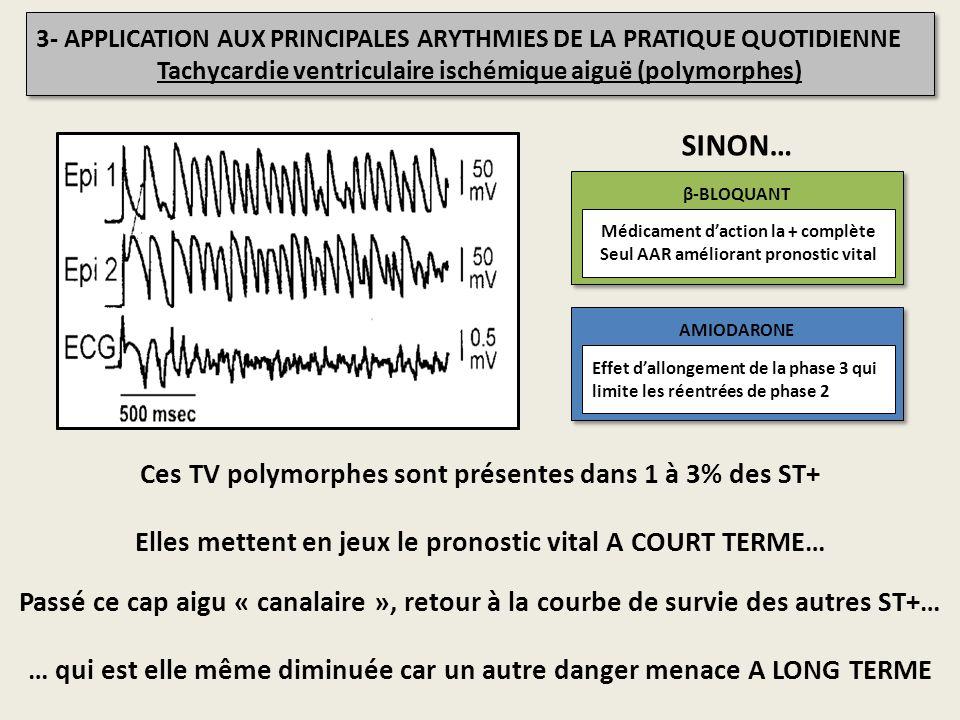 INa Ito IKr IKs ICal ENDOCARDE EPICARDE IK ATP 3- APPLICATION AUX PRINCIPALES ARYTHMIES DE LA PRATIQUE QUOTIDIENNE Tachycardie ventriculaire ischémiqu