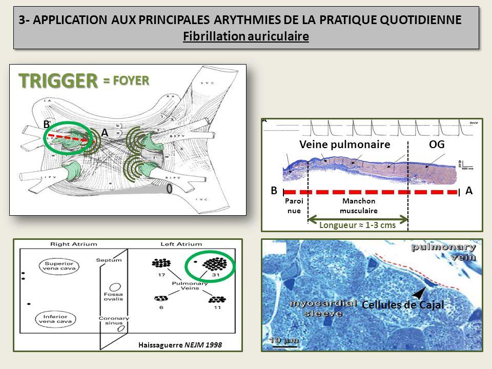 Haissaguerre NEJM 1998 A B Longueur 1-3 cms AB Veine pulmonaireOG Manchon musculaire Paroi nue Cellules de Cajal TRIGGER = FOYER 3- APPLICATION AUX PR