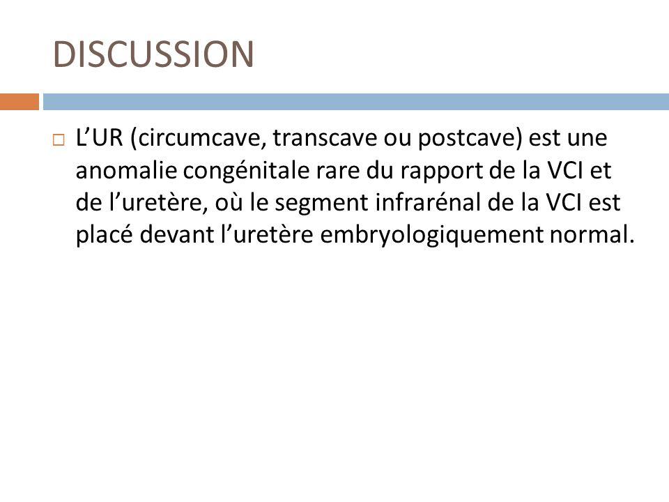 DISCUSSION LUR (circumcave, transcave ou postcave) est une anomalie congénitale rare du rapport de la VCI et de luretère, où le segment infrarénal de