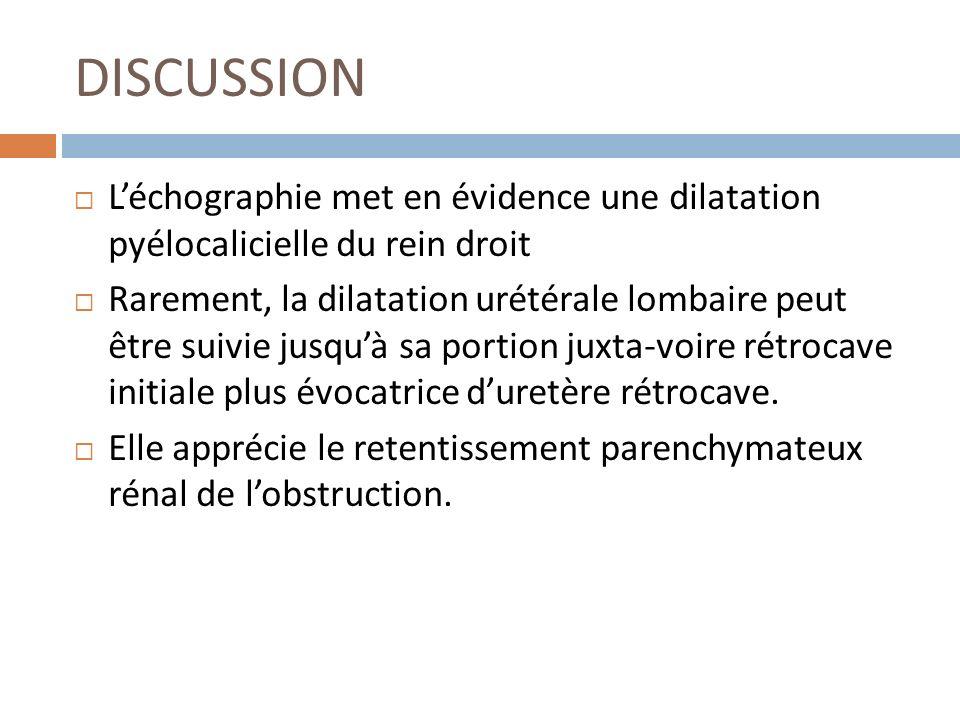 DISCUSSION Léchographie met en évidence une dilatation pyélocalicielle du rein droit Rarement, la dilatation urétérale lombaire peut être suivie jusqu