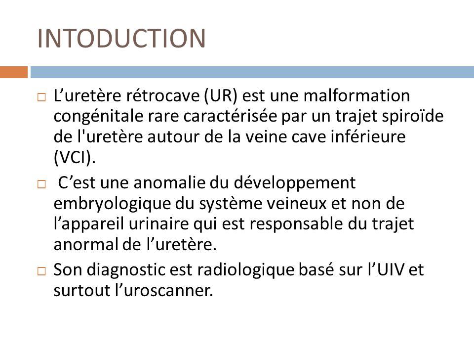 INTODUCTION Luretère rétrocave (UR) est une malformation congénitale rare caractérisée par un trajet spiroïde de l'uretère autour de la veine cave inf