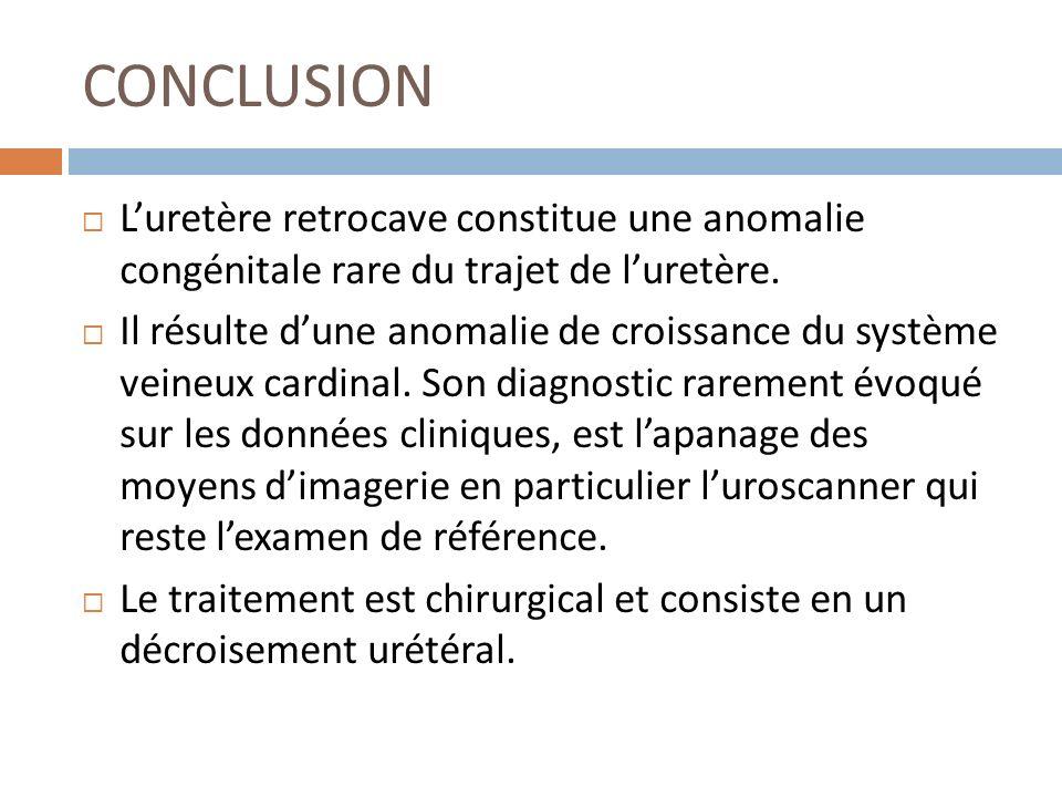 CONCLUSION Luretère retrocave constitue une anomalie congénitale rare du trajet de luretère. Il résulte dune anomalie de croissance du système veineux