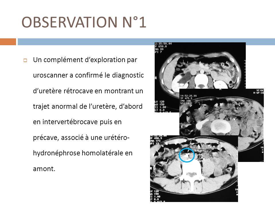 OBSERVATION N°1 Un complément dexploration par uroscanner a confirmé le diagnostic duretère rétrocave en montrant un trajet anormal de luretère, dabor