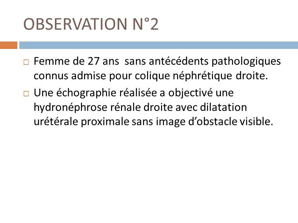 OBSERVATION N°2 Femme de 27 ans sans antécédents pathologiques connus admise pour colique néphrétique droite. Une échographie réalisée a objectivé une