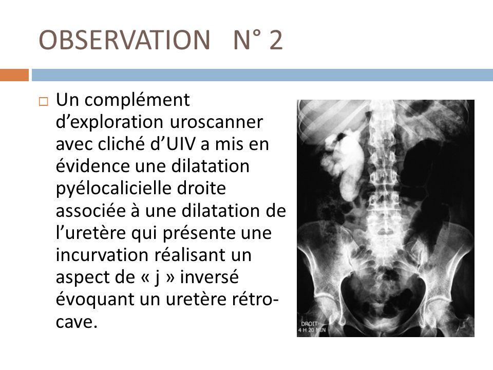 OBSERVATION N° 2 Un complément dexploration uroscanner avec cliché dUIV a mis en évidence une dilatation pyélocalicielle droite associée à une dilatat