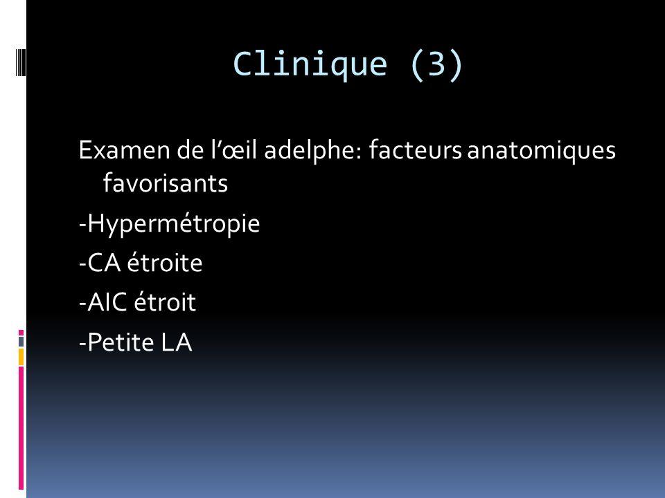 Clinique (2) Signes physique s Œil rouge avec CPK Œdème de cornée CA étroite AIC fermé en gonioscopie Pupille en semi-mydriase aréflexique PIO élevée (40 à 60 mmHg)