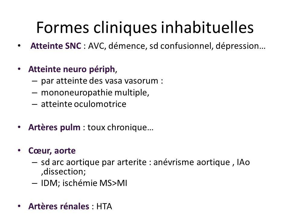 Formes cliniques inhabituelles Atteinte SNC : AVC, démence, sd confusionnel, dépression… Atteinte neuro périph, – par atteinte des vasa vasorum : – mo