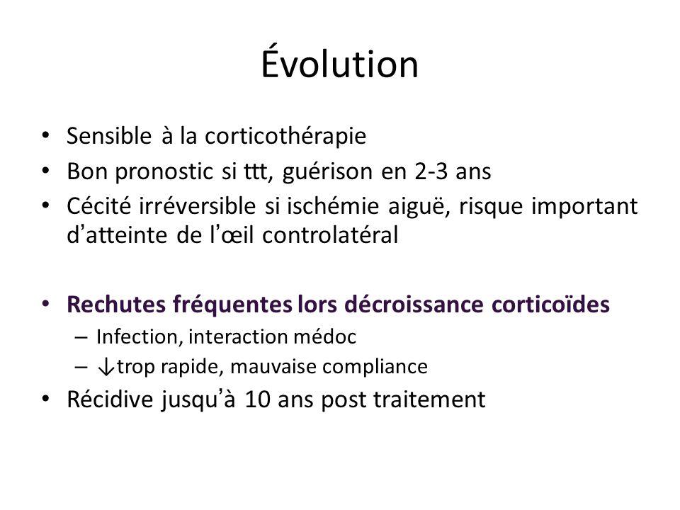 Évolution Sensible à la corticothérapie Bon pronostic si ttt, guérison en 2-3 ans Cécité irréversible si ischémie aiguë, risque important d atteinte d